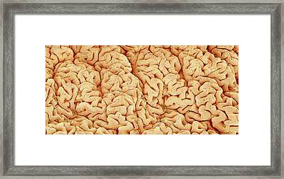 Intestinal Lining Framed Print by Susumu Nishinaga