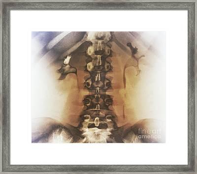 Kidney Stones, X-ray Framed Print by Zephyr