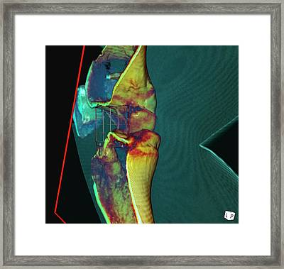 Knee Ligament Surgery Framed Print by D & L Graphics