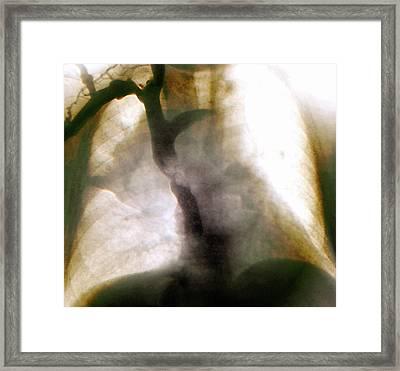 Metastatic Lung Cancer Framed Print by Zephyr