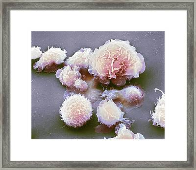 Monocyte White Blood Cells Framed Print by Nibsc
