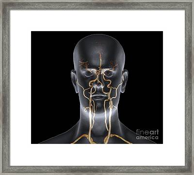Neck And Head Arteries, Mra Scan Framed Print by Zephyr