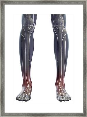 Nerves Of The Legs Framed Print by Science Picture Co