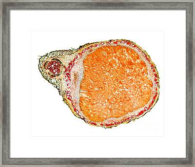 Nitrogen-fixing Root Nodule, Micrograph Framed Print by Dr. Keith Wheeler