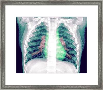 Pneumonia Framed Print by Photostock-israel