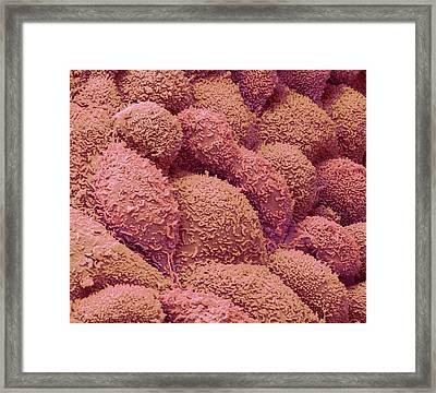 Post Menopausal Uterus Framed Print by Steve Gschmeissner