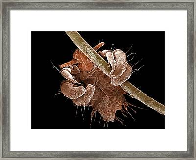 Pubic Louse Framed Print by Clouds Hill Imaging Ltd