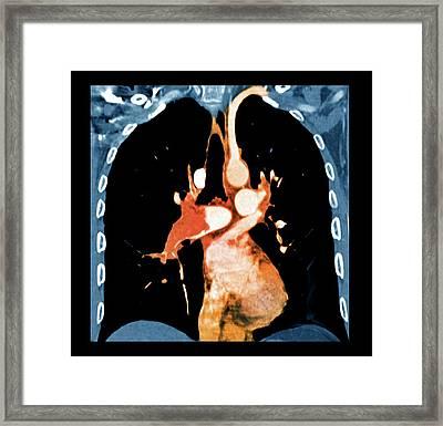 Pulmonary Embolism Framed Print by Zephyr