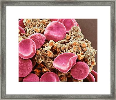 Red Blood Cells And Platelets Framed Print by Steve Gschmeissner
