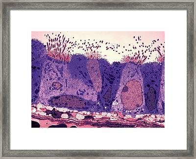 Respiratory Epithelium Framed Print by Ami Images
