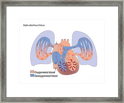 Right-sided Heart Failure, Artwork Framed Print by Peter Gardiner