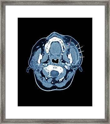 Salivary Gland Stone Framed Print by Zephyr