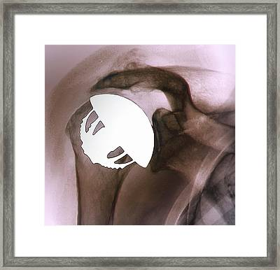 Shoulder Replacement Framed Print by Zephyr