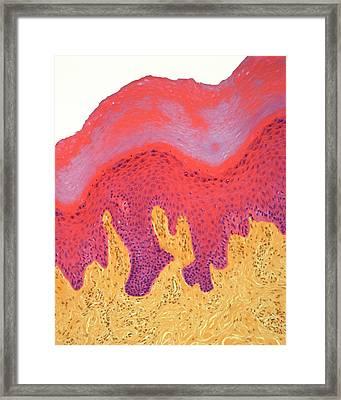 Skin Of Fingertip Framed Print by Steve Gschmeissner