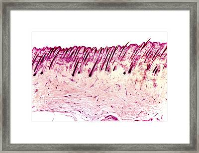 Skin Tissue, Light Micrograph Framed Print by Dr. Keith Wheeler