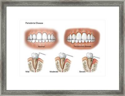 Three Stages Of Periodontal Disease Framed Print by TriFocal Communications