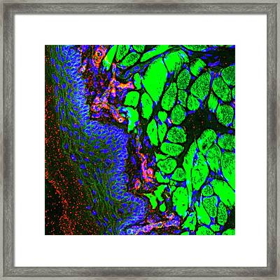 Tongue Blood Vessels Framed Print by R. Bick, B. Poindexter, Ut Medical School