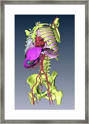 Torso Skeleton And Organs Framed Print by D & L Graphics