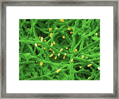 Trichophyton Fungus Framed Print by Thierry Berrod, Mona Lisa Production