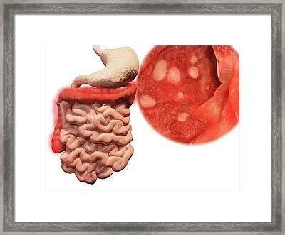 Ulcerative Colitis Framed Print by Juan Gaertner