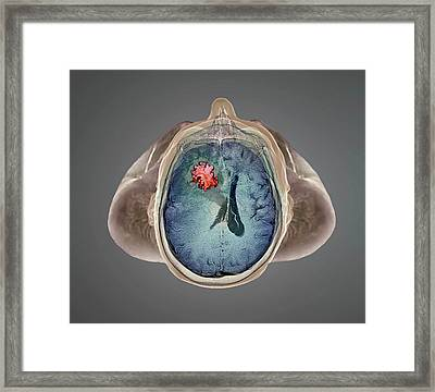 Brain Tumour Framed Print by Zephyr