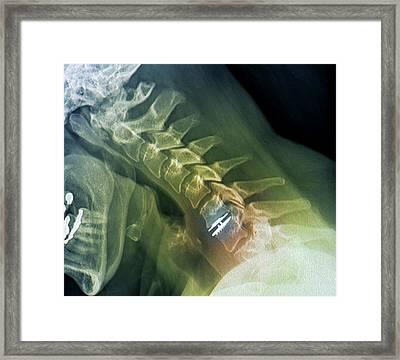 Spinal Disc Implant Framed Print by Zephyr
