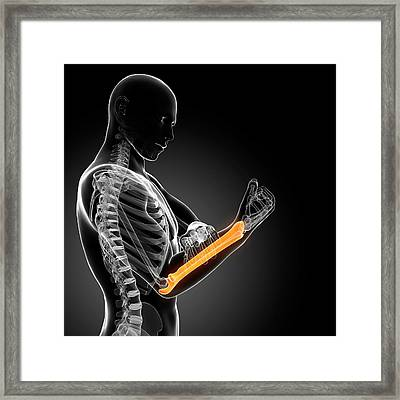 Human Arm Pain Framed Print by Sebastian Kaulitzki