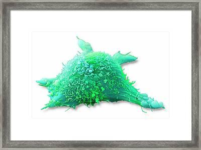Skin Cancer Cell Framed Print by Steve Gschmeissner