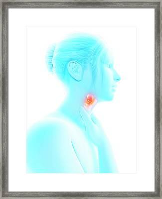 Inflammation Of The Larynx Framed Print by Sebastian Kaulitzki