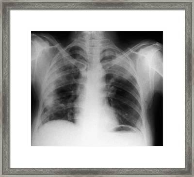 Abdominal Air Pockets Framed Print by Zephyr