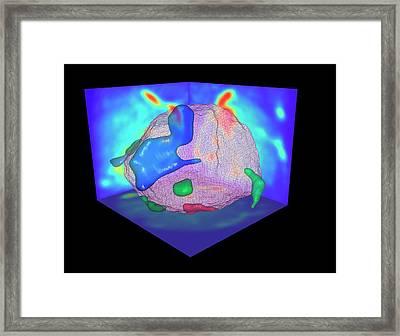 Aluminium Alloy Framed Print by Ammrf, University Of Sydney