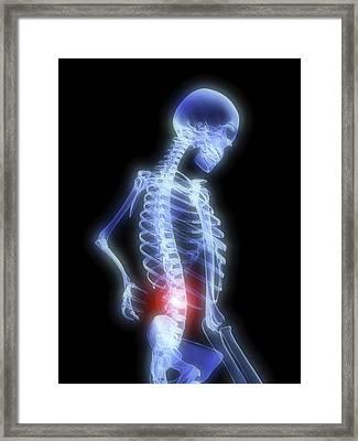 Back Pain Framed Print by Alfred Pasieka