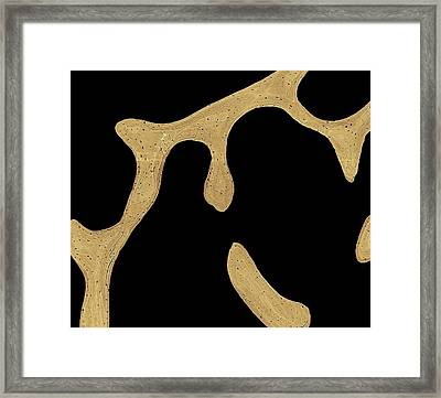 Bone Cross-section Framed Print by Science Photo Library