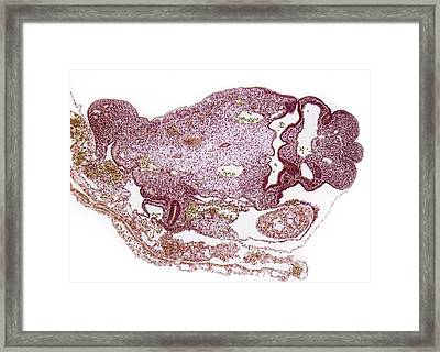 Miscarried Embryo Framed Print by Steve Gschmeissner