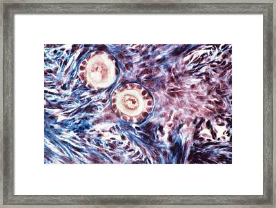Ovarian Follicles, Light Micrograph Framed Print by Science Photo Library
