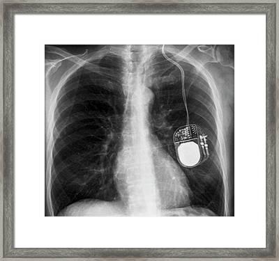 Parkinson's Brain Pacemaker Framed Print by Zephyr