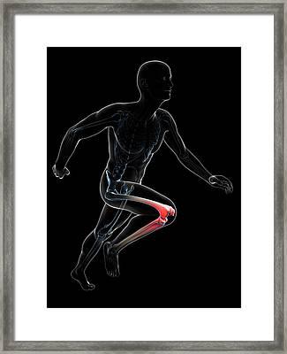 Runner's Knee Joint Framed Print by Sebastian Kaulitzki