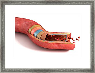 Sectioned Blood Vessel Framed Print by Science Picture Co