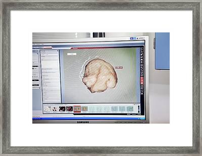 Sperm Whale Tissue Analysis Framed Print by Thomas Fredberg