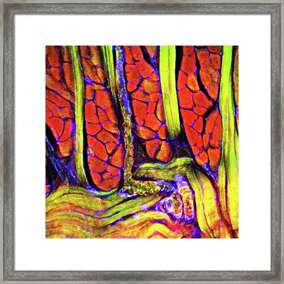Tongue Tissue Framed Print by R. Bick, B. Poindexter, Ut Medical School