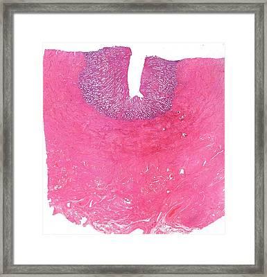 Uterus Framed Print by Microscape