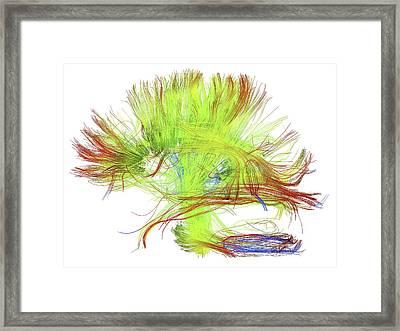 White Matter Fibres Of The Human Brain Framed Print by Alfred Pasieka