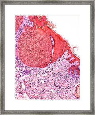 Skin Cancer Framed Print by Steve Gschmeissner