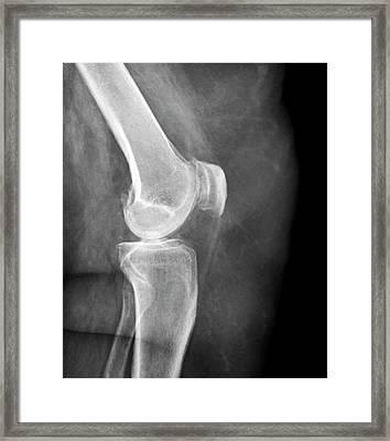 Arthritis Of The Knee Framed Print by Zephyr