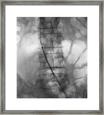 Balloon Angioplasty, X-ray Framed Print by Science Photo Library
