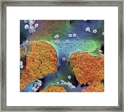 Bone Marrow Framed Print by Steve Gschmeissner
