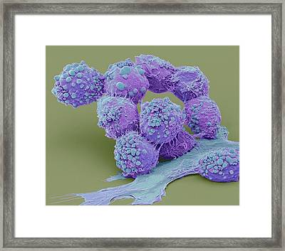 Brain Cancer Cells Framed Print by Steve Gschmeissner