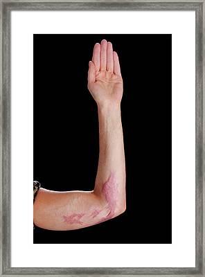 Burns Scar Framed Print by Mid Essex Hospital Services Nhs Trust