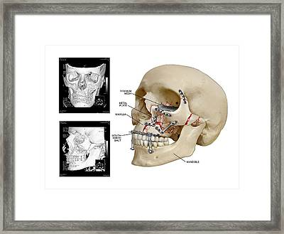 Facial Skull Fractures Fixation Framed Print by John T. Alesi