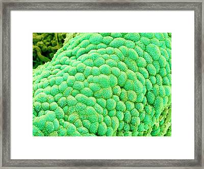 Gallbladder Surface Framed Print by Susumu Nishinaga